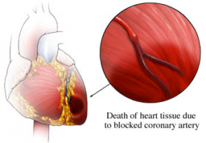 Οξύ έμφραγμα του μυοκαρδίου, Απόστολος Τζίκας, επεμβατικός καρδιολόγος
