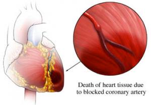 Acute Myocardial Infarction, Apostolos Tzikas, Interventional Cardiologist