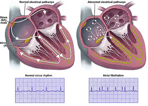 normal sinus rythm and atrial fibrillation, Apostolos Tzikas, interventional cardiologist