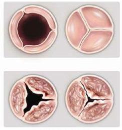 Παθήσεις βαλβίδων καρδιάς, Απόστολος Τζίκας, επεμβατικός καρδιολόγος